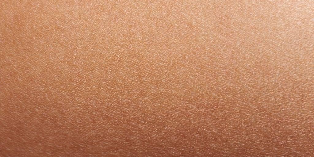 Larocheposay ArticlePage Eczema Dry skin vs eczema